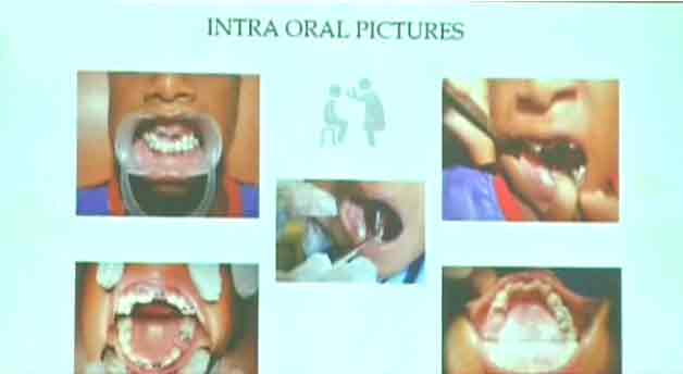 526 teeth in 7-year-old boy's mouth ... Caused by cellphone radiation?