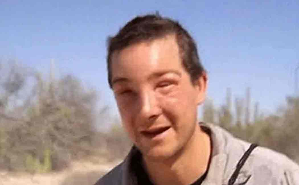 bear grylls attacked by bee
