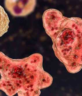 man in america affected by brain eating amoeba