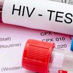 doctor misdiagnoses aids test in simla